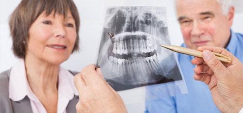 Consentement Eclaire Information patient chirurgie implantologie